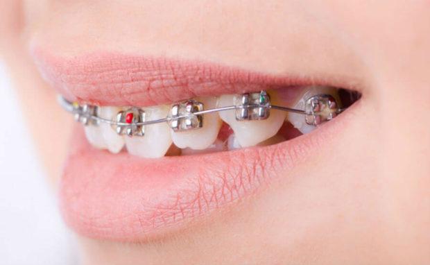 Мифы и заблуждения о выравнивании зубов и брекетах