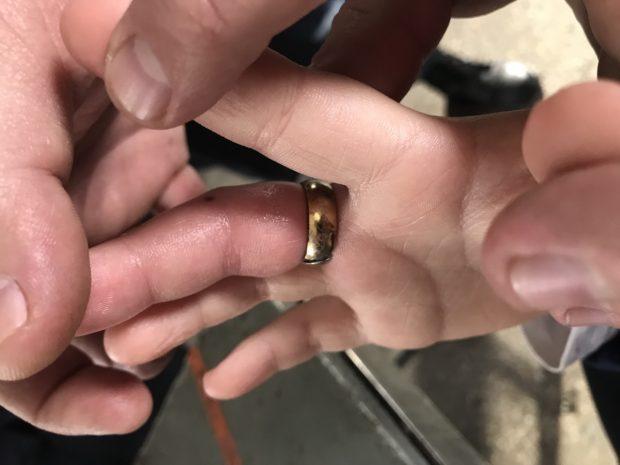 В Харькове спасатели разрезали кольцо и освободили палец 8-летнего мальчика