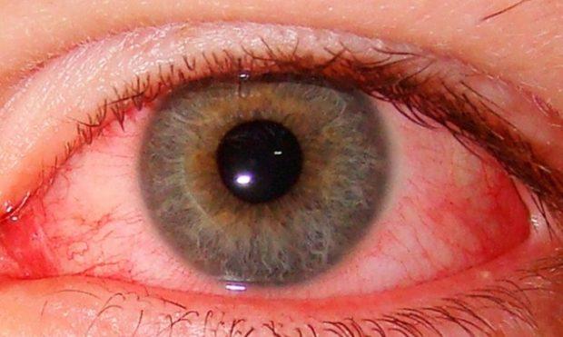 В Харькове у женщины из глаза достали паразита, который вырастает до 30 см
