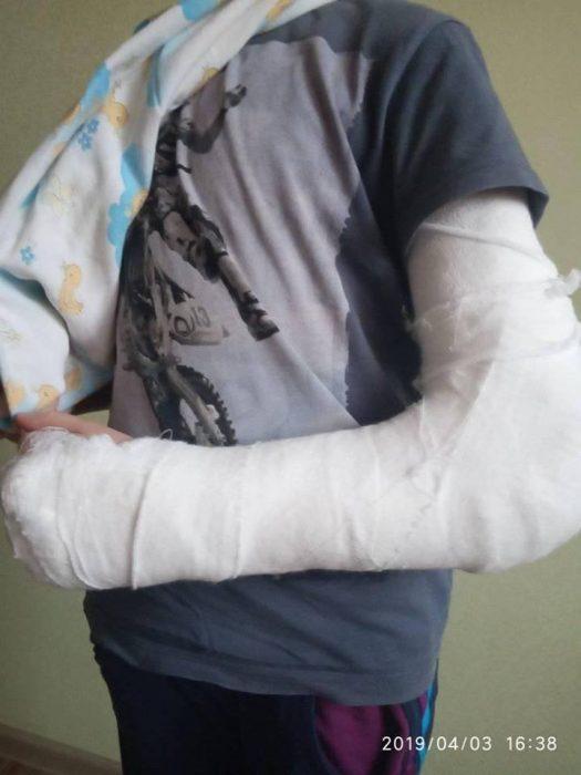 В поликлинике Харькова на ребенка упал рентген