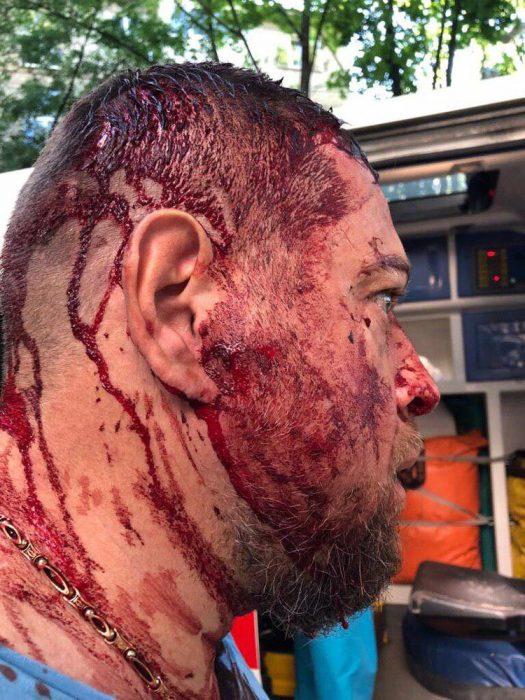 """В Харькове избили активиста """"Национального корпуса"""""""