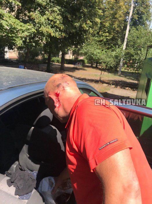 В Харькове пара с собакой напала на мужчину после замечания об отсутствии намордника