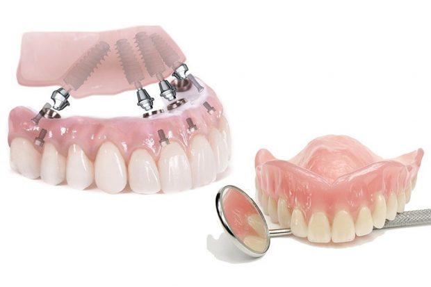 Съемные и несъемные зубные протезы