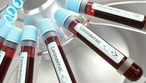 В Украине зафиксировано 475 случаев коронавирусной болезни COVID-19