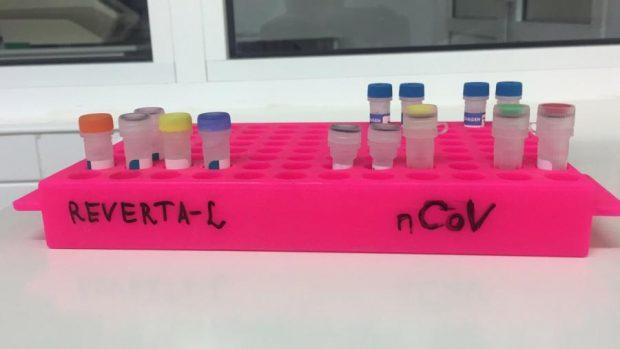 В области есть около 5000 экспресс-тестов и системы ПЦР для проведения более 5000 исследований