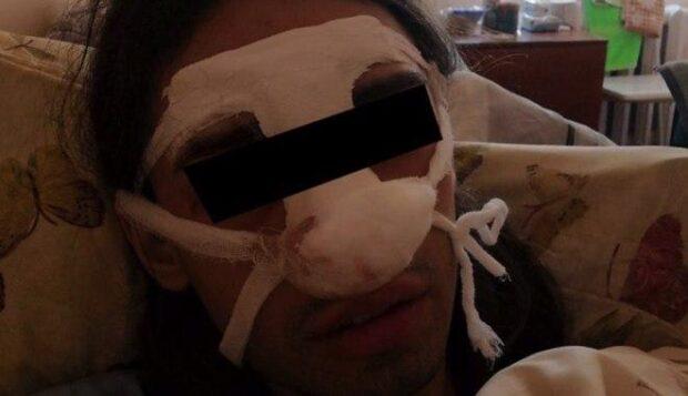 В Харькове трое неизвестных напали на трансгендерную женщину