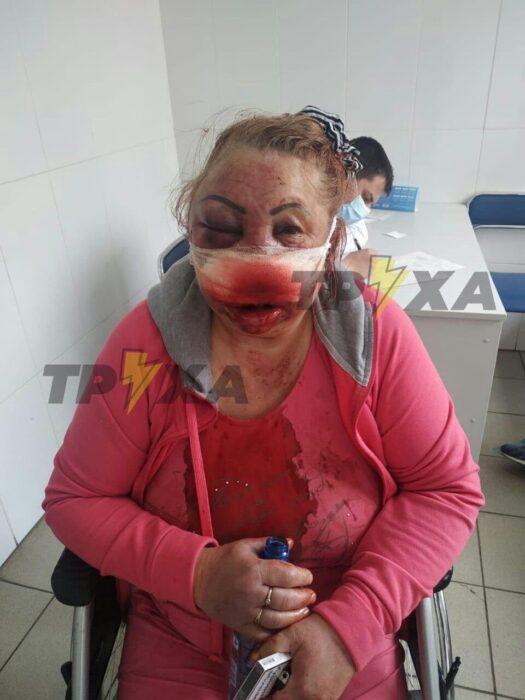 На Салтовке неизвестные ворвались в квартиру к женщине, сильно избили ее и ограбили