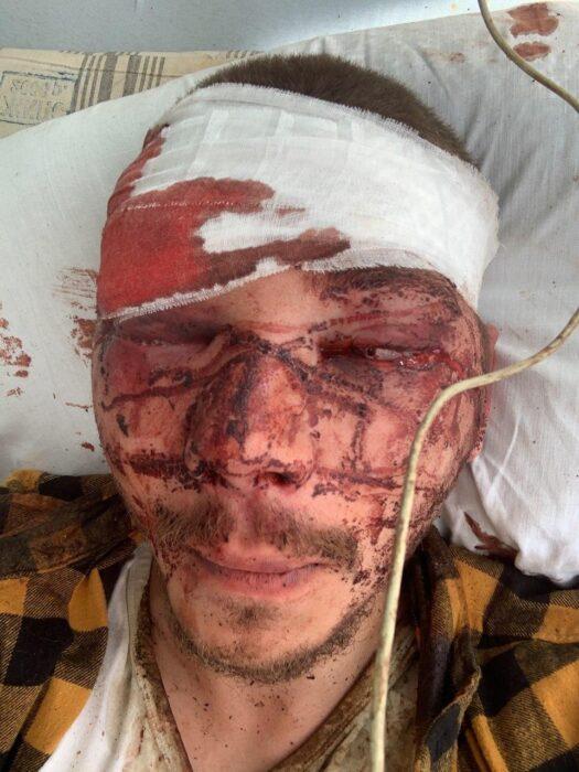 В Харькове избили члена партии Шария