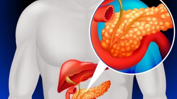 Что нужно знать о причинах и симптомах панкреатита
