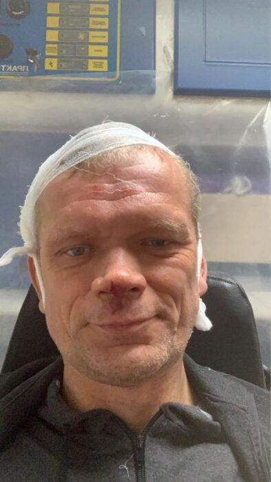 Под Харьковом двое неизвестных избили экс-министра агорополитики