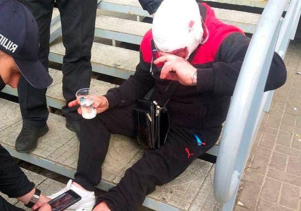 """На ХТЗ в очереди в """"Буфет"""" поссорились мужчины: один из них начал стрелять"""