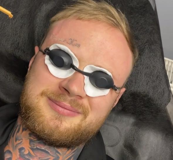 """""""Кернес жив"""": парень вывел тату, которое было у него на лбу"""